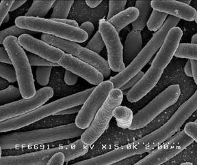 E. Coli bacteria viewed under a microscope